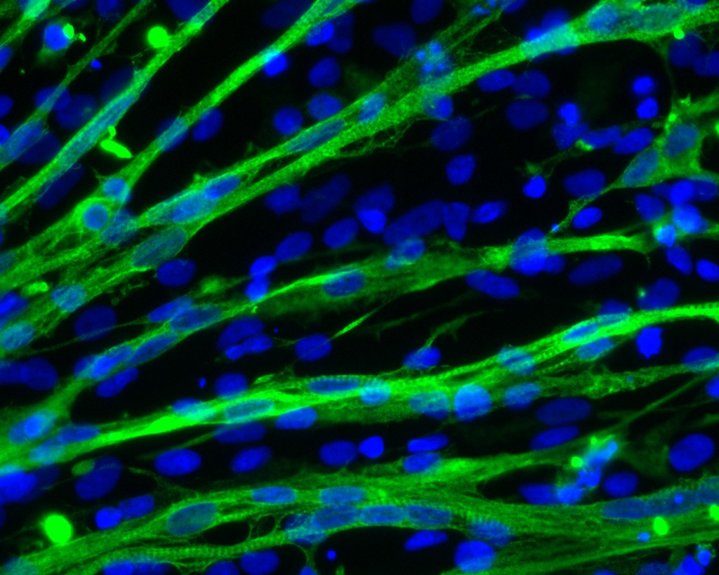 Researchers Discover New Way To Make Muscle Cells From Human Stem Cells