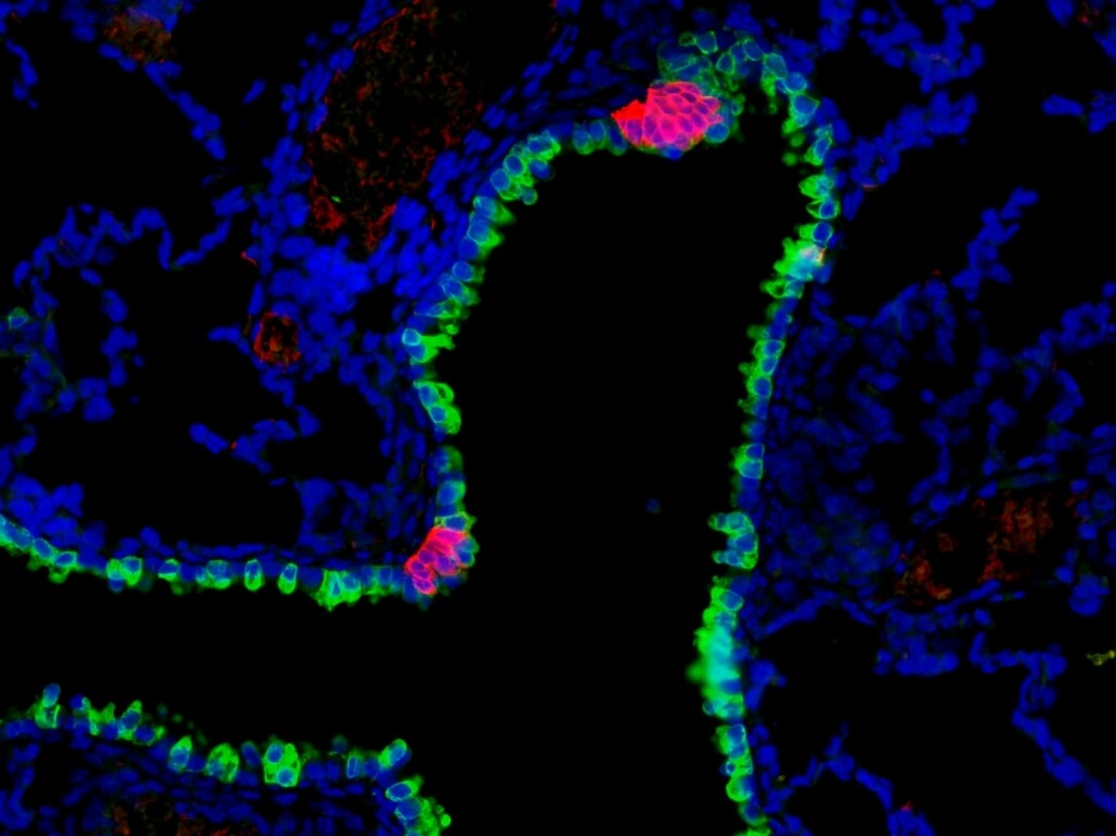 Pulmonary neuroendocrine cells (red) are rare cells found in clusters along the mammalian airway, where they act as sensors, sending information to the central nervous system. These clusters are found interspersed among other airway epithelial cells (green). The cells, whose function was previously unknown, have been found by a group led by medical geneticist Xin Sun to sense environmental stimuli and report to the nervous system to orchestrate an immune response.