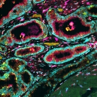 This is a section of breast tissue from a female patient with invasive breast cancer. Different cells were labeled using a novel immunofluorescene (IF) method. The tumor contains many other cell types such as immune and stromal cells (depicted in magenta, red, yellow and purple) besides tumor cells (shown in cyan and fluorescent green). It is important to be able to label multiple immune and stromal cell types in the same tissue because we can study their location, quantity and interaction with tumor cells to predict a patient's disease outcome. Karla Esbona (post-doc). Dept. of Cell and Regenerative Biology, SMPH | Multispectral Fluorescence Microscope (Vectra system, Perkin-Elmer)