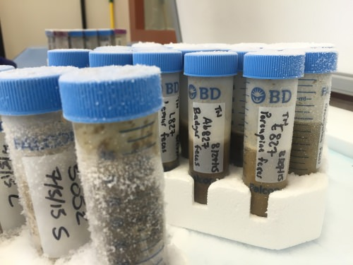 Photo: Test tubes of feces samples