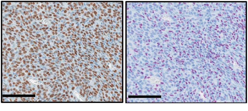 Photo: Cells from a bone cancer caused by a histone mutation are brown if they contain the mutation (left). Purple cells are intact, without the mutation (right).