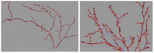Photo: Mouse neurons with and without human AT-1