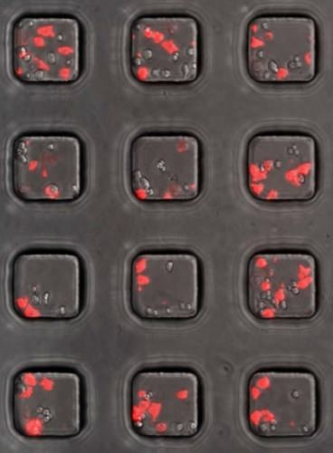 Photo: Cancer cells in sample wells turn red when killed by the T-cells engineered to include the chimeric antigen receptor.