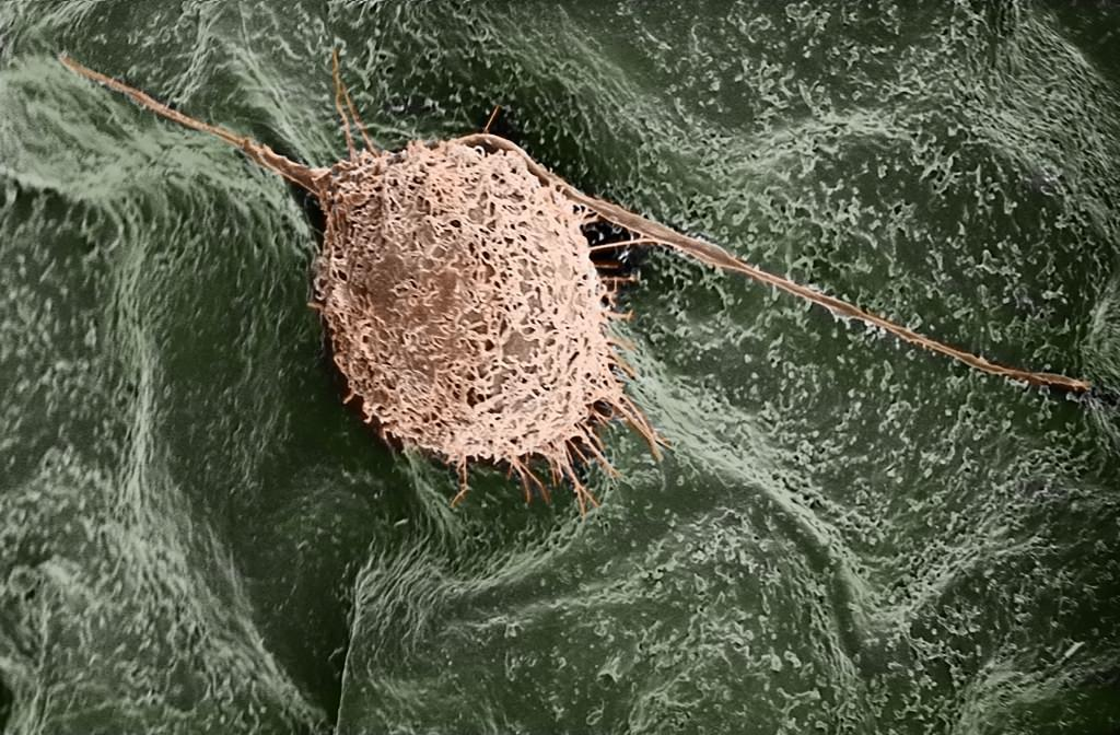 Photo: A human fibroblast cell finds a home on a lilac leaf