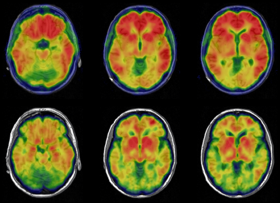One project funded by the new initiative will explore how microorganisms in the human gut may influence Alzheimer's disease through plaques and tangles, shown here in brain images.