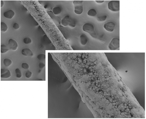 Photos: A surgical suture coated with a mineral that mimics bone