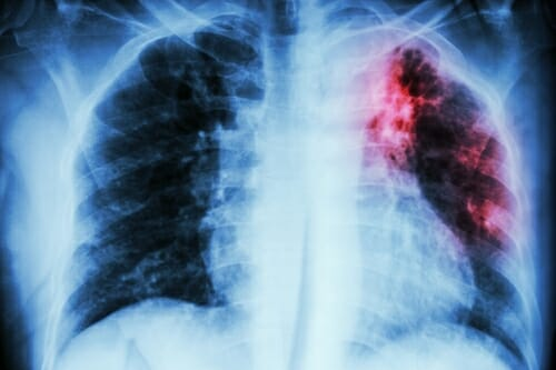 Photo: X-ray of lungs infected with TB