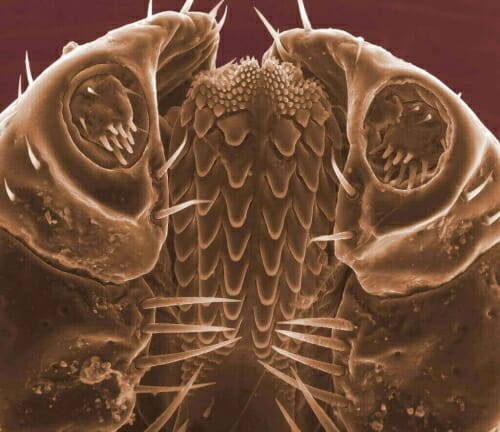 Photo: Microscopic closeup of tick's head