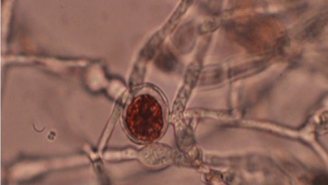 The red pigment and antimicrobial compound bikaverin is shown accumulating in a chlamydospore in the fungus Fusarium fujikuroi.