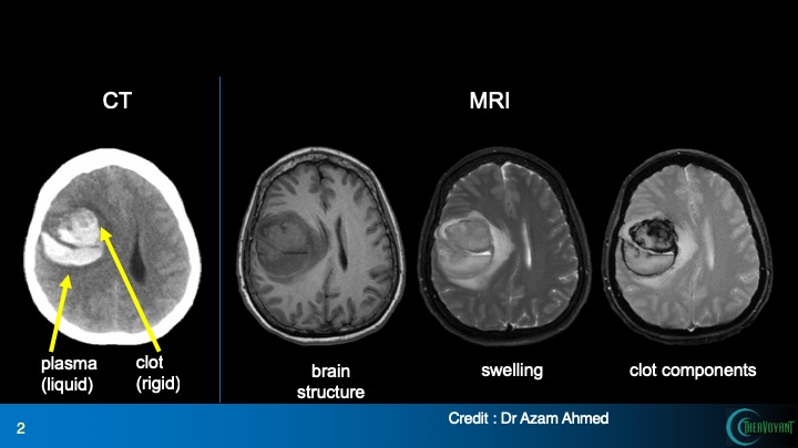MR Guidance: Next frontier in hemorrhagic stroke