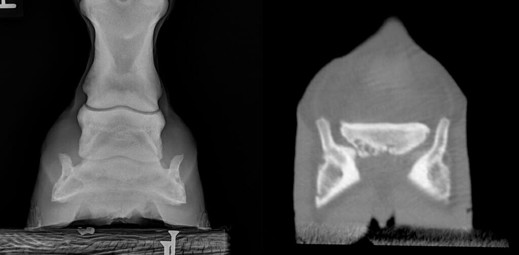 Photo: Two x-ray images.