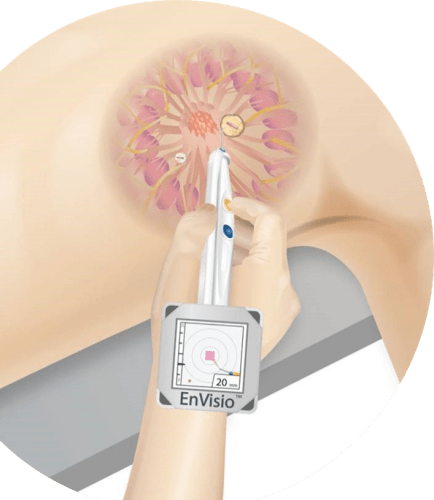 An illustration showing how the Elucent device pinpoints a clip that has been placed inside the patient at a tumor site.