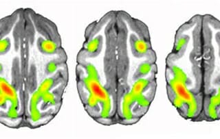 Colorized scans of 3 brains from top