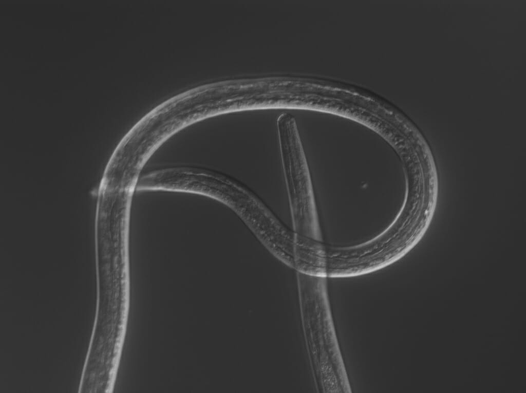 Parasitic worms use their keen senses to wriggle through their hosts