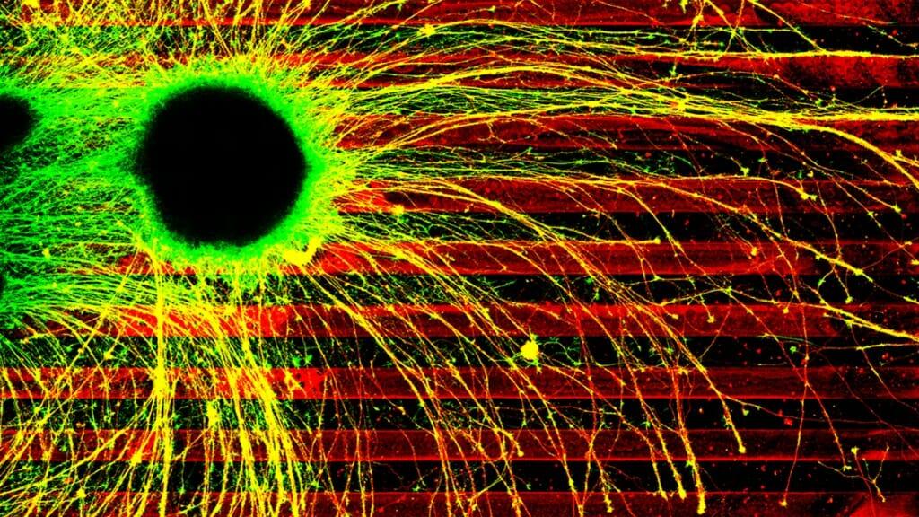 Axons in the brain