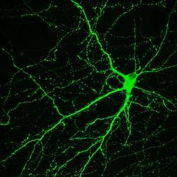 Image: neural stem cell