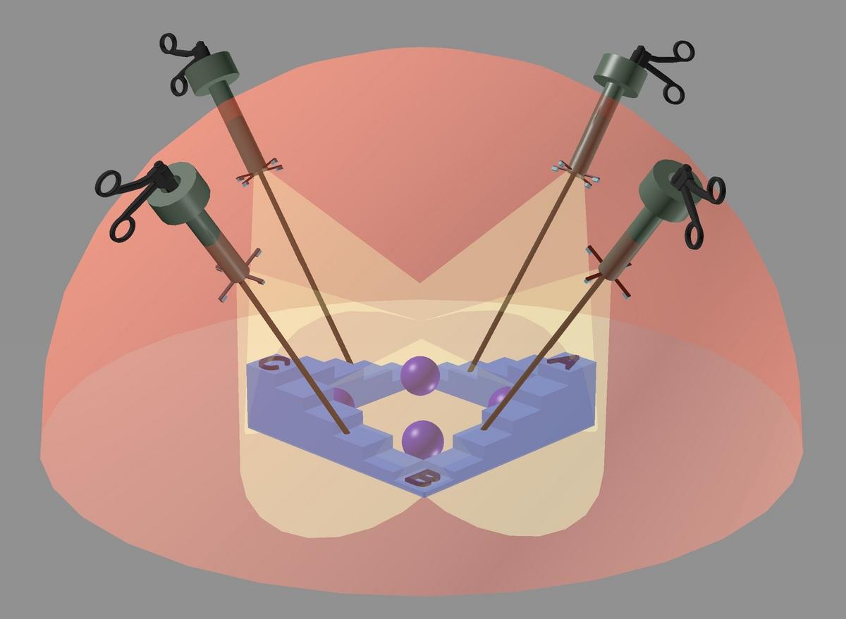 Image: Diagram of laparoscopic imaging microcamera