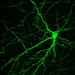Image: neural stem cell