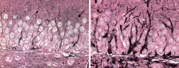 Photo: normal and diseased mouse brains