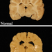 Photo: Dog brains with and without Pelizaeus Merzbacher disease modeling