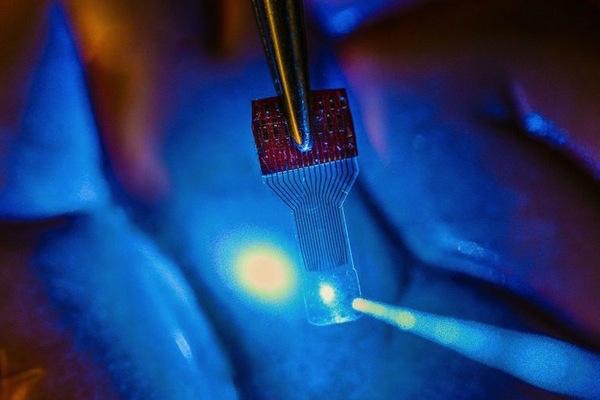 Photo: implantable brain sensor